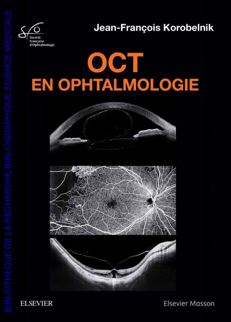 (nouveau) OCT EN OPHTALMOLOGIE-Rapport SFO 2019 0oYnO