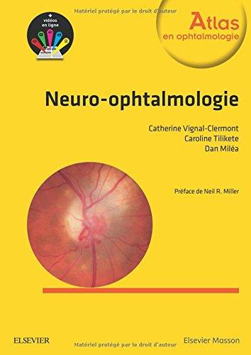 Neuro-ophtalmologie  0od8D