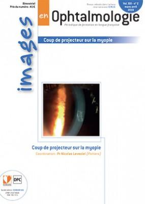 images en Ophtalmologie / N° 2 / avril 2019  Gxa3v