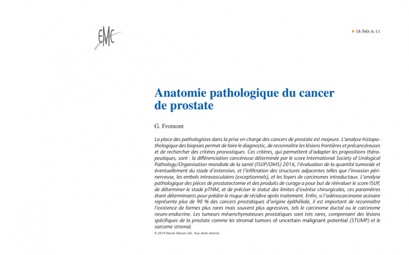 Anatomie pathologique du cancer de prostate (mai 2019) KxkJy