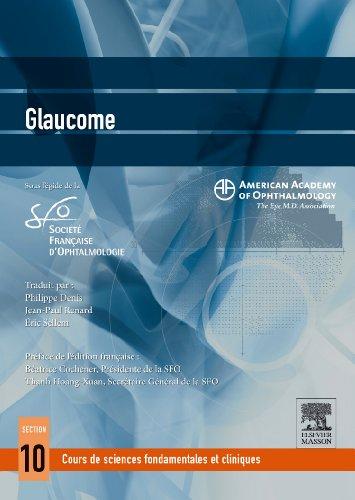 Glaucome AAO/SFO ML3m1